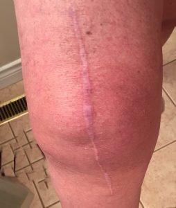 new knee, www.moderngillie.com