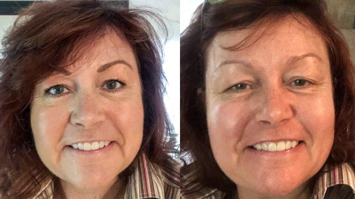 Blepharoplasty eyelid lift, www.moderngillie.com