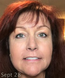 Eyelid lift surgery recovery, www.moderngillie.com